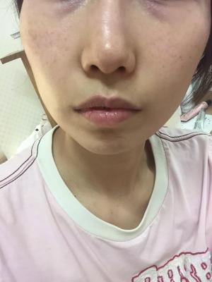 미구하라 안티-링클 이펙트 아이 크림 요거 물건이에요 정말!!